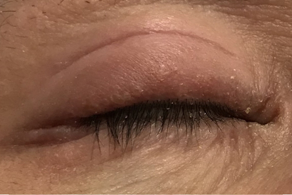 下眼瞼脱脂(経結膜脱脂法)